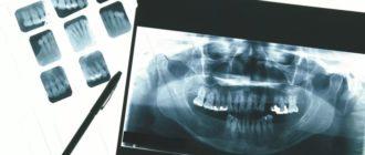 рентген пленка